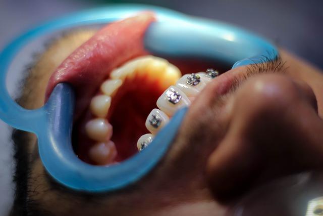 nevidni zobni aparati